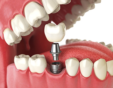 Dental Implants - Straumann Implant System