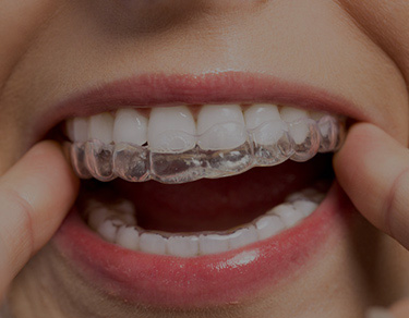 Orthodontist in Bromley