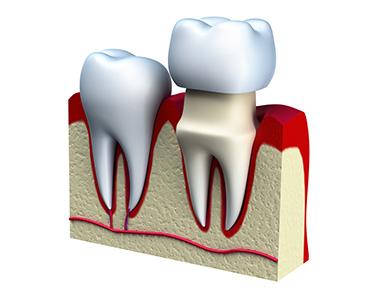Dental crowns - Dental Caps