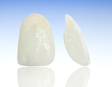 Dental Veneers - Porcelain Veneers