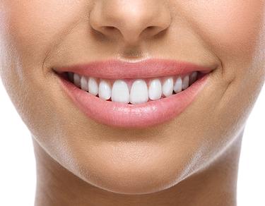 Air-flow Tooth Polishing