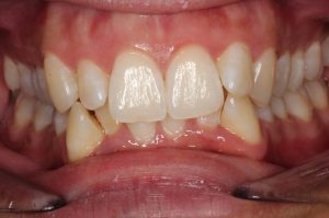 Before - Shirley Dental