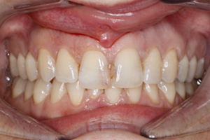 Before - Shirley Dental Practice